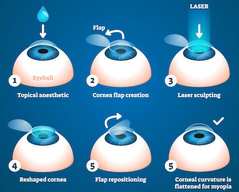 LASIK Steps Diagram