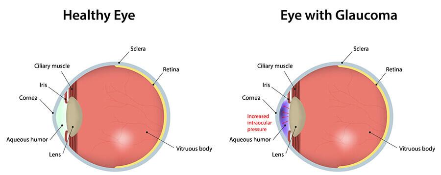 Healthy Eye vs Eye with Glaucoma